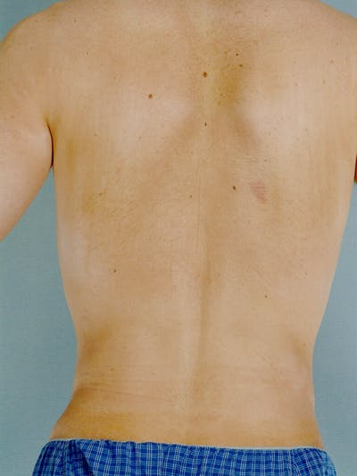 Abdominal Etching Gallery - Patient 20913097 - Image 8