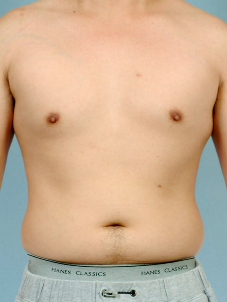 Abdominal Etching Gallery - Patient 20913100 - Image 1
