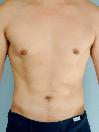 Abdominal Etching Gallery - Patient 20913100 - Image 2