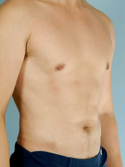 Abdominal Etching Gallery - Patient 20913100 - Image 4
