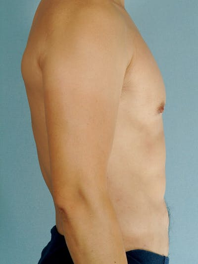 Abdominal Etching Gallery - Patient 20913100 - Image 6