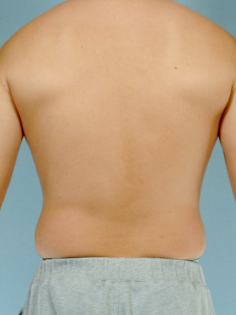 Abdominal Etching Gallery - Patient 20913100 - Image 7