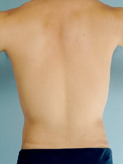 Abdominal Etching Gallery - Patient 20913100 - Image 8