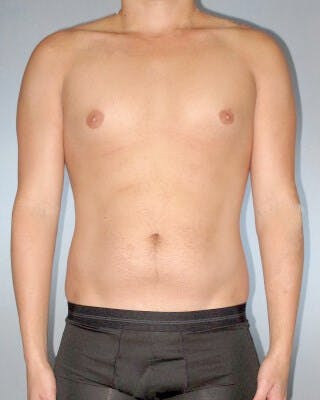 Abdominal Etching Gallery - Patient 20913101 - Image 1