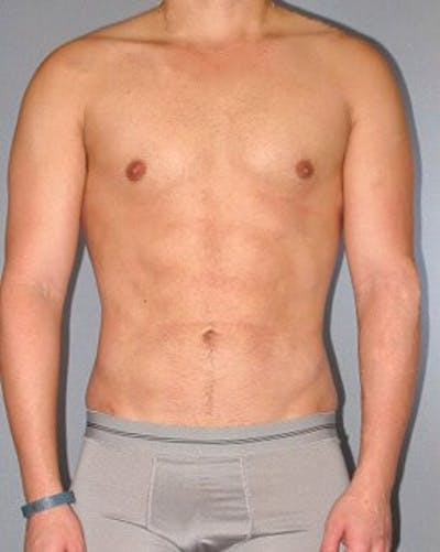 Abdominal Etching Gallery - Patient 20913101 - Image 2