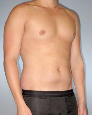 Abdominal Etching Gallery - Patient 20913101 - Image 3
