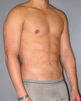Abdominal Etching Gallery - Patient 20913101 - Image 4