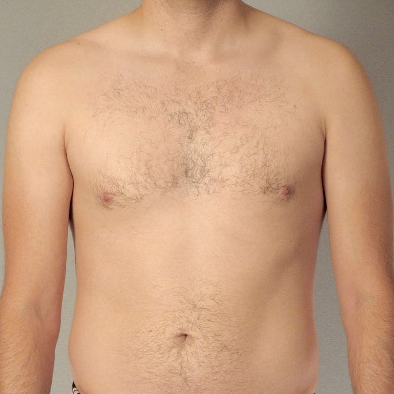 Abdominal Etching Gallery - Patient 20913104 - Image 1
