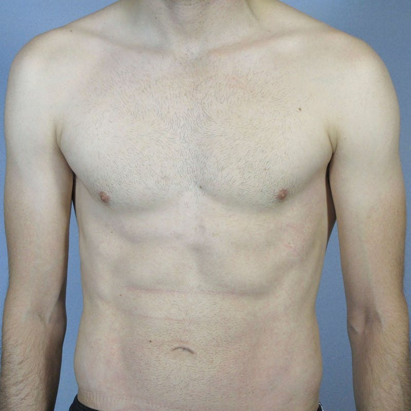 Abdominal Etching Gallery - Patient 20913104 - Image 2