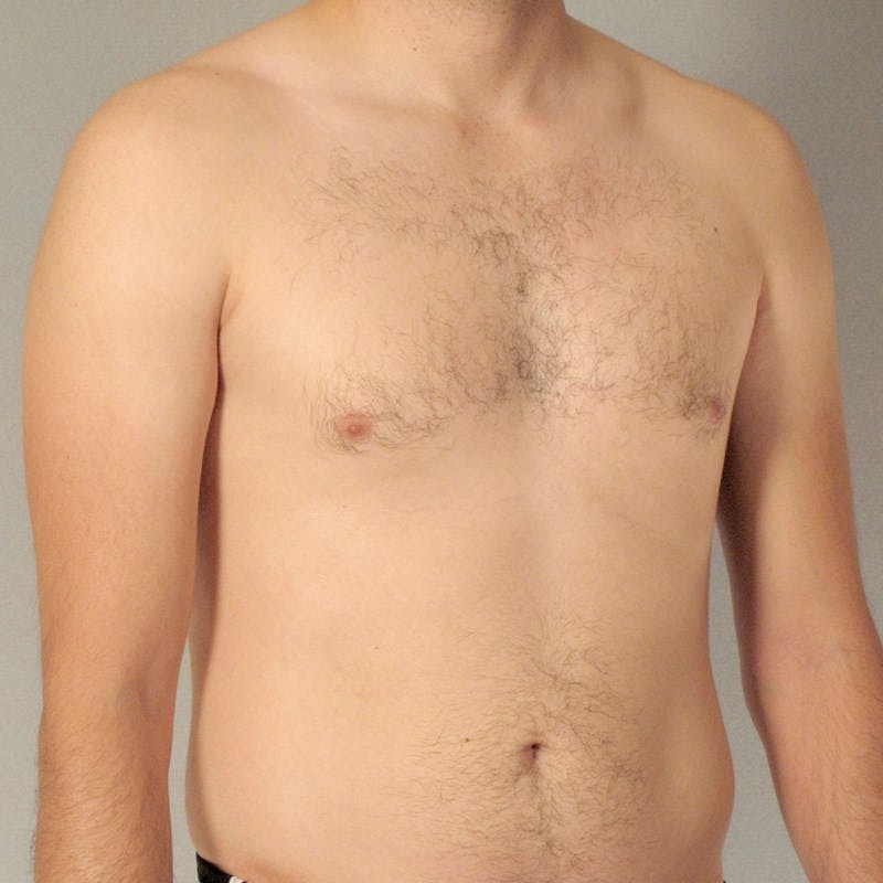 Abdominal Etching Gallery - Patient 20913104 - Image 3