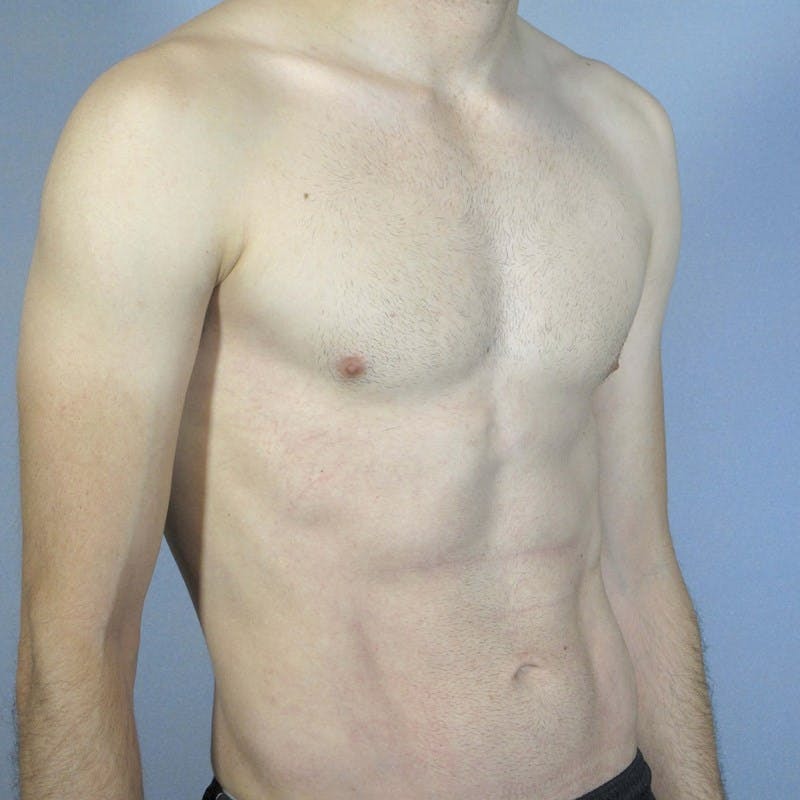 Abdominal Etching Gallery - Patient 20913104 - Image 4