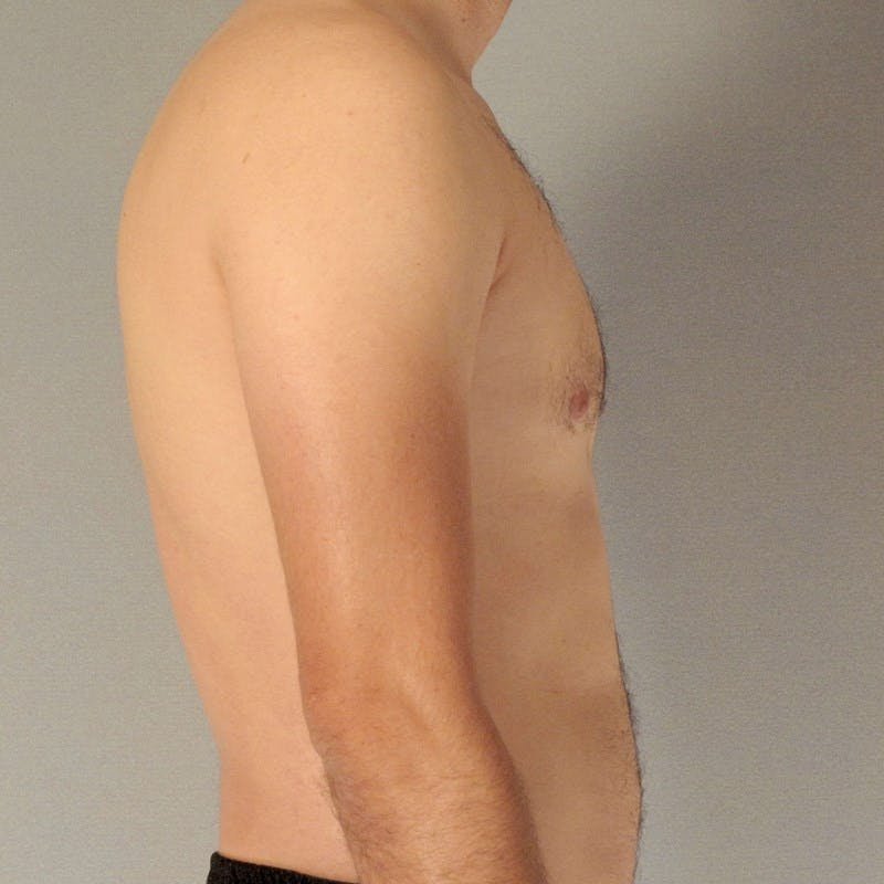 Abdominal Etching Gallery - Patient 20913104 - Image 5