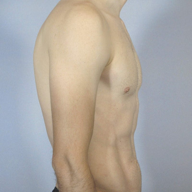 Abdominal Etching Gallery - Patient 20913104 - Image 6