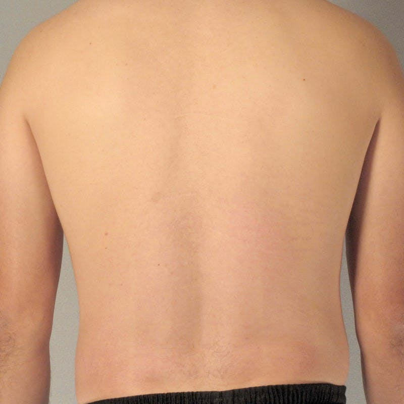Abdominal Etching Gallery - Patient 20913104 - Image 7