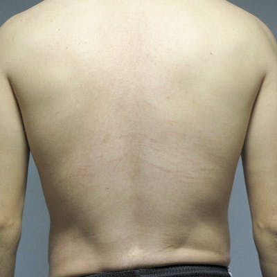 Abdominal Etching Gallery - Patient 20913104 - Image 8