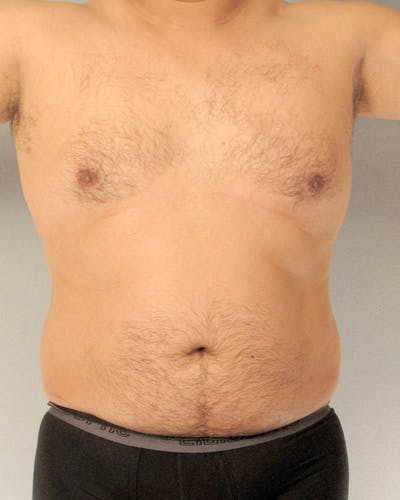 Abdominal Etching Gallery - Patient 20913105 - Image 1