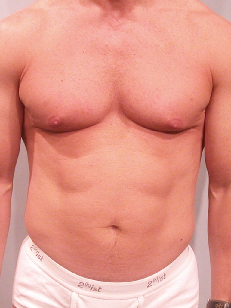 Abdominal Etching Gallery - Patient 20913106 - Image 1