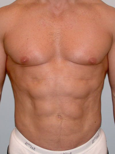Abdominal Etching Gallery - Patient 20913106 - Image 2