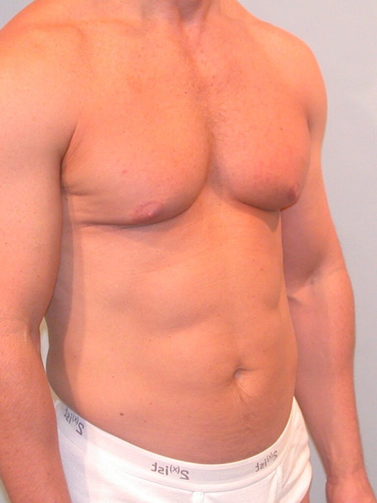 Abdominal Etching Gallery - Patient 20913106 - Image 3