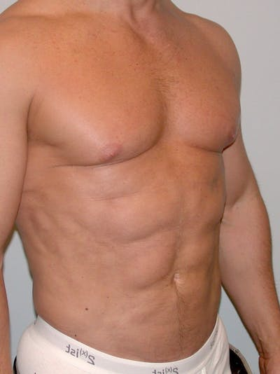 Abdominal Etching Gallery - Patient 20913106 - Image 4