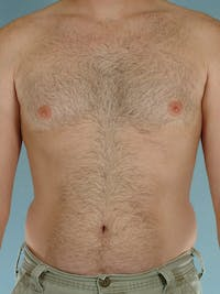 Abdominal Etching Gallery - Patient 20913108 - Image 1
