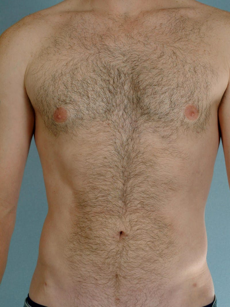 Abdominal Etching Gallery - Patient 20913108 - Image 2