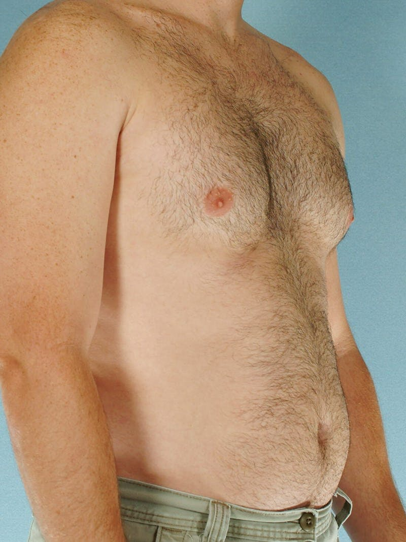 Abdominal Etching Gallery - Patient 20913108 - Image 3