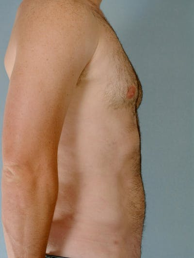 Abdominal Etching Gallery - Patient 20913108 - Image 6