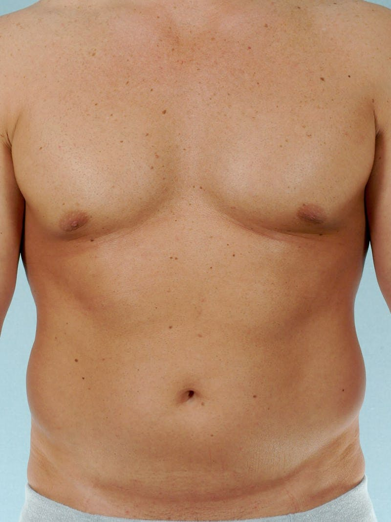 Abdominal Etching Gallery - Patient 20913118 - Image 1
