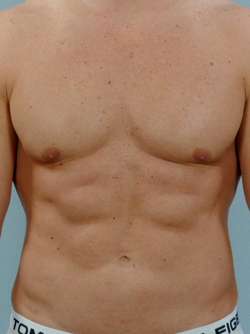 Abdominal Etching Gallery - Patient 20913118 - Image 2