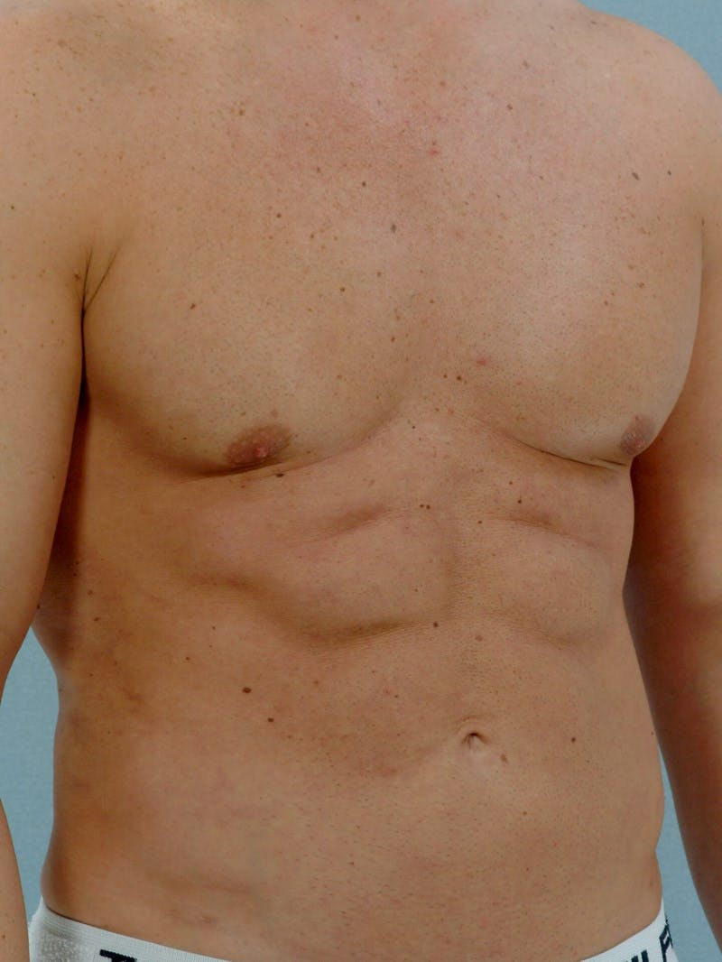 Abdominal Etching Gallery - Patient 20913118 - Image 4