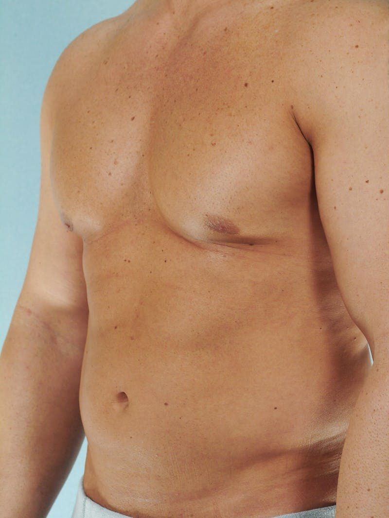 Abdominal Etching Gallery - Patient 20913118 - Image 5