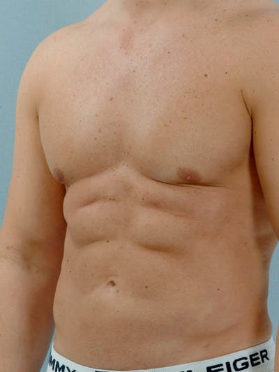 Abdominal Etching Gallery - Patient 20913118 - Image 6