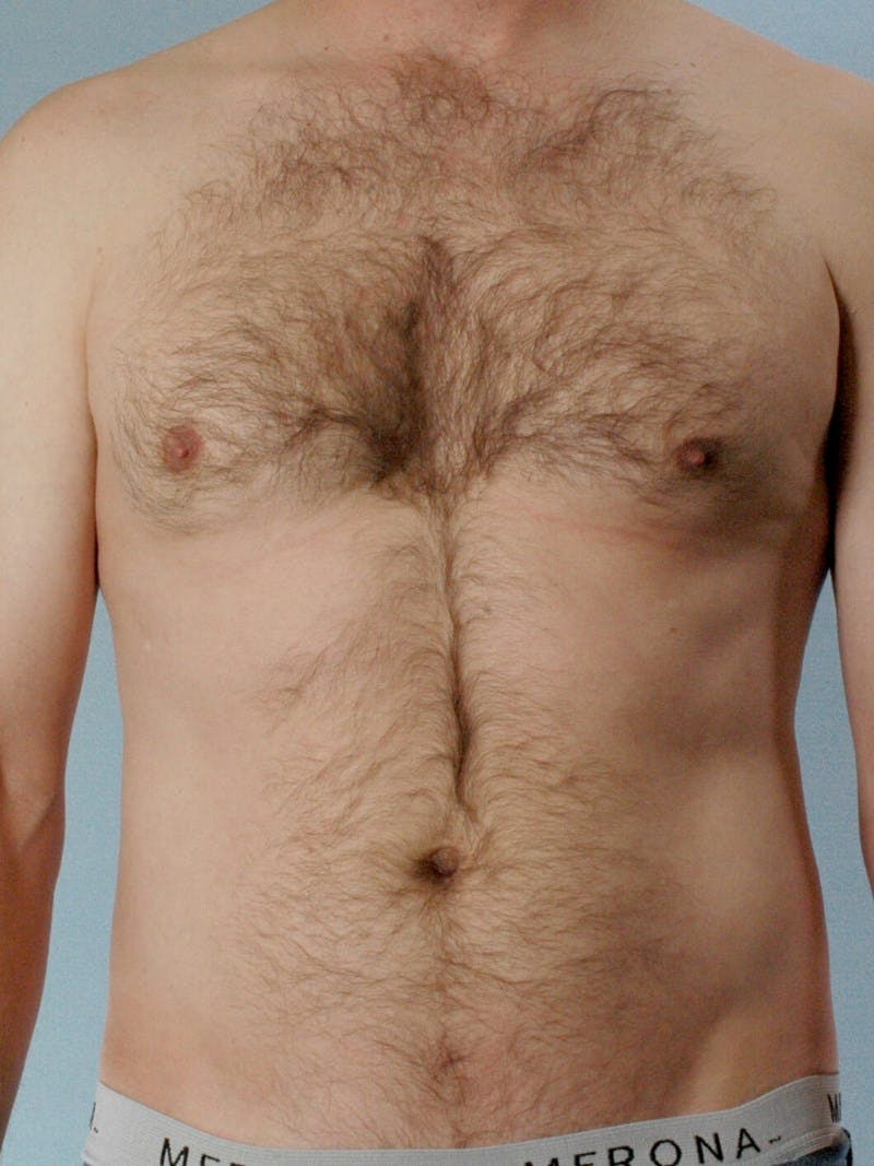 Abdominal Etching Gallery - Patient 20913120 - Image 1