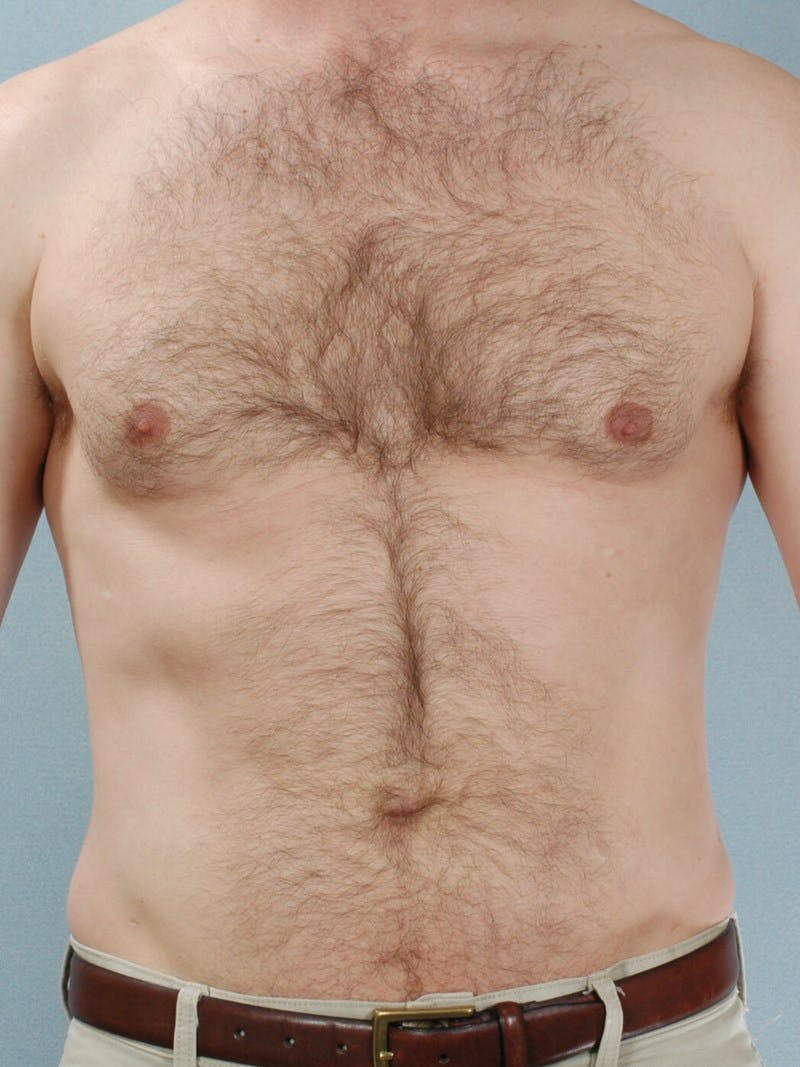 Abdominal Etching Gallery - Patient 20913120 - Image 2
