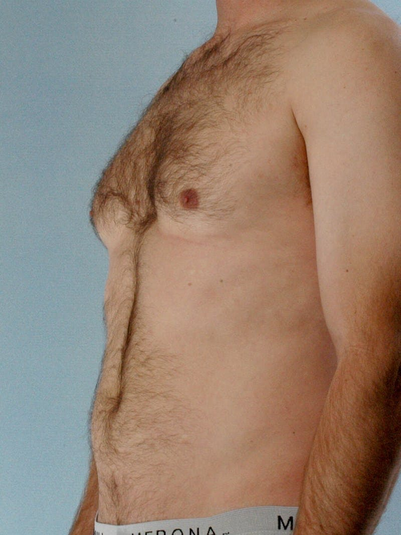Abdominal Etching Gallery - Patient 20913120 - Image 3