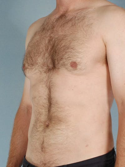 Abdominal Etching Gallery - Patient 20913120 - Image 4