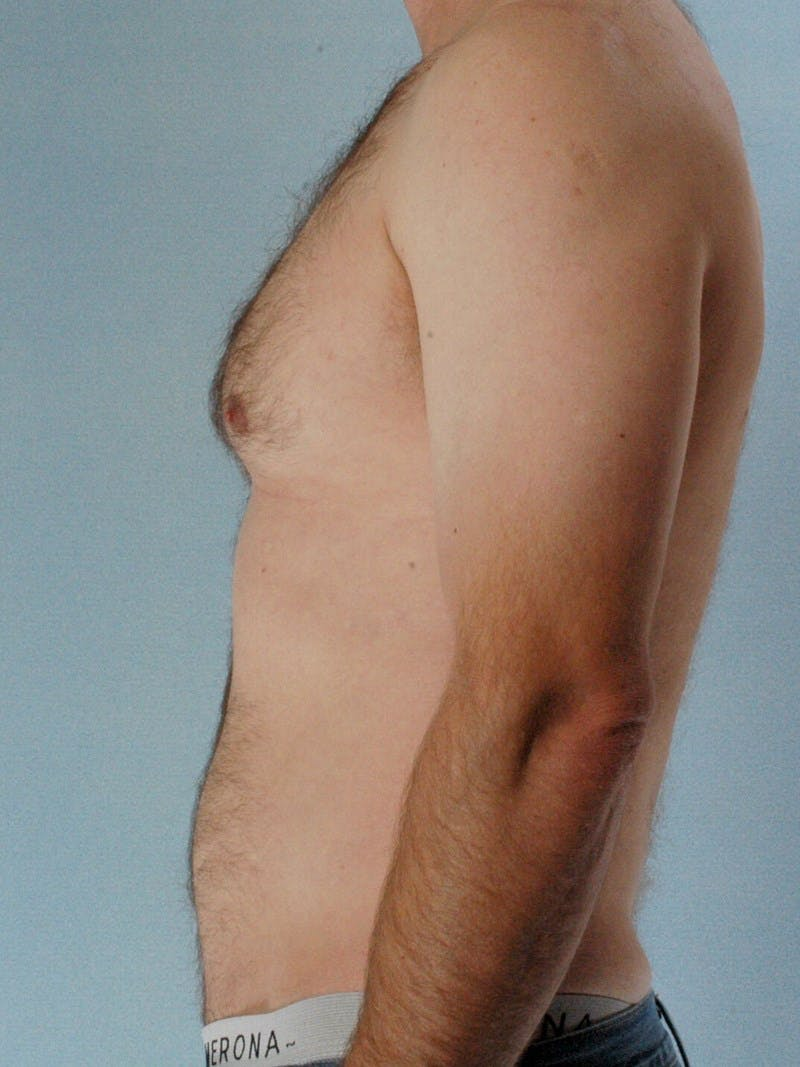 Abdominal Etching Gallery - Patient 20913120 - Image 5