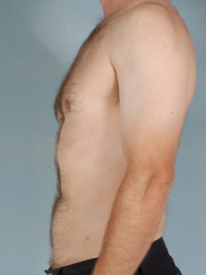 Abdominal Etching Gallery - Patient 20913120 - Image 6
