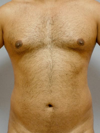 Abdominal Etching Gallery - Patient 20913121 - Image 1
