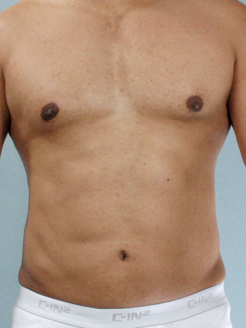 Abdominal Etching Gallery - Patient 20913121 - Image 2
