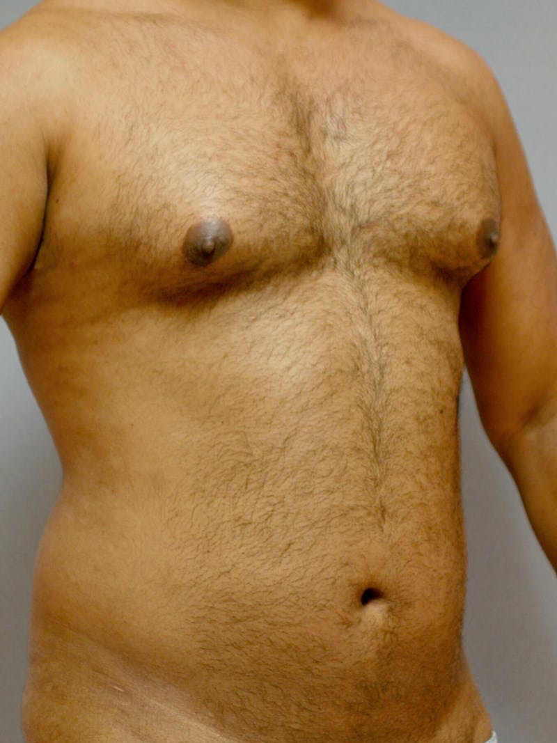 Abdominal Etching Gallery - Patient 20913121 - Image 3
