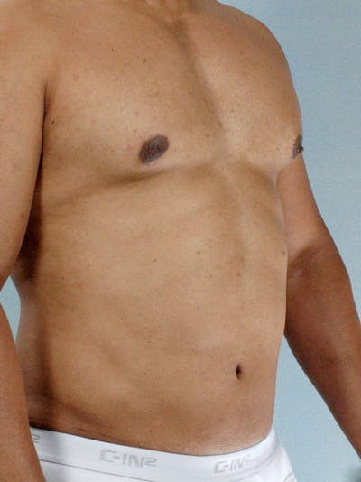 Abdominal Etching Gallery - Patient 20913121 - Image 4