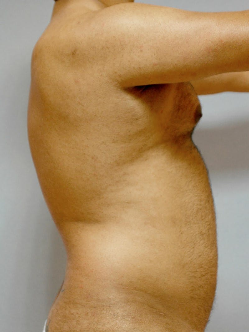Abdominal Etching Gallery - Patient 20913121 - Image 5