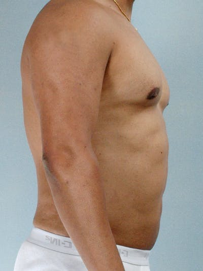 Abdominal Etching Gallery - Patient 20913121 - Image 6