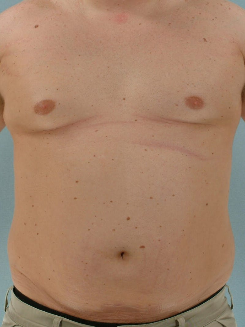Abdominal Etching Gallery - Patient 20913123 - Image 1