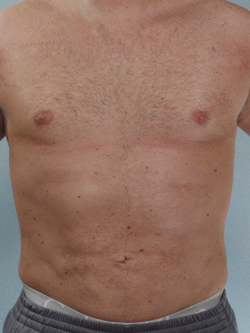 Abdominal Etching Gallery - Patient 20913123 - Image 2