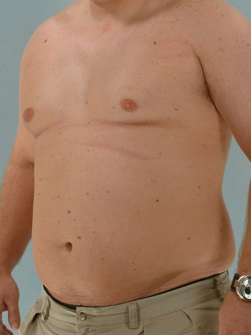 Abdominal Etching Gallery - Patient 20913123 - Image 3