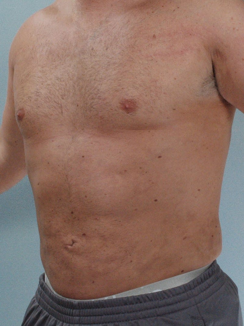 Abdominal Etching Gallery - Patient 20913123 - Image 4