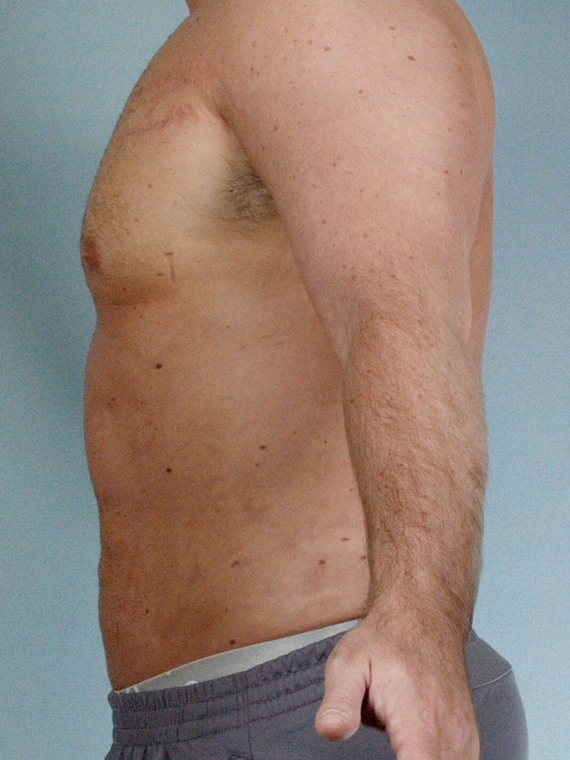 Abdominal Etching Gallery - Patient 20913123 - Image 6
